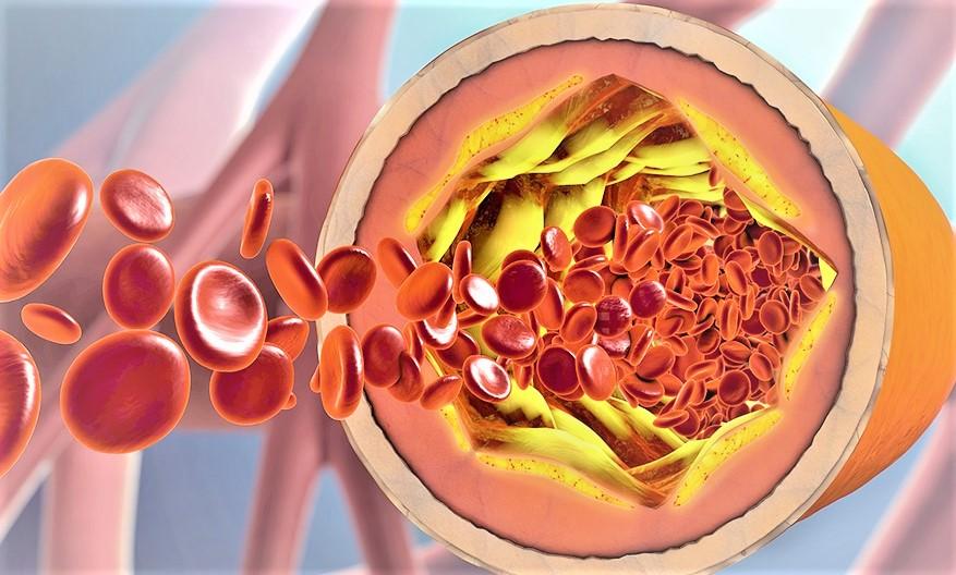 Le régime méditerranéen contribue à réduire le cholestérol
